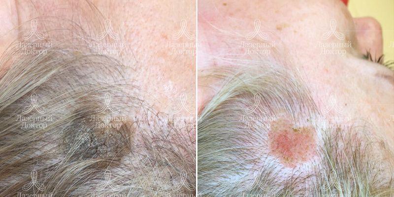 Удаление родинки на волосистой части головы лазером thumbnail