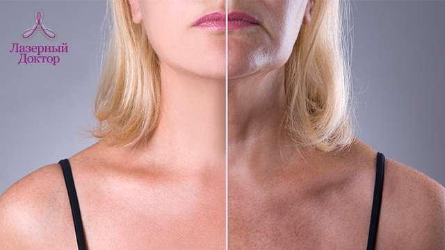 Почему на теле у женщин появляются пигментные пятна?